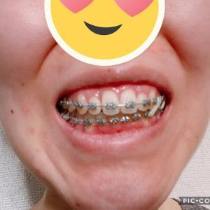 顎変形症:術後6ヶ月経過