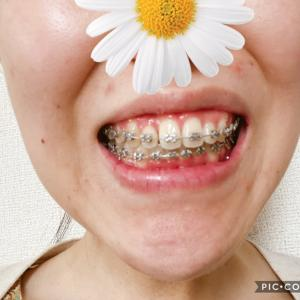 顎変形症:術後矯正4回目