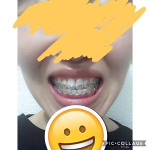 顎変形症:調整7回目