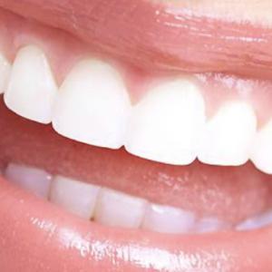 2021.6.27 歯の矯正について
