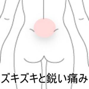 ズキズキと響く腰痛 室蘭登別すのさき鍼灸整骨院症例報告