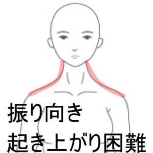 寝違えによる痛みと動作制限 室蘭登別すのさき鍼灸整骨院症例報告