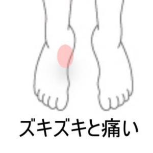 有痛性外脛骨 室蘭登別すのさき鍼灸整骨院症例報告