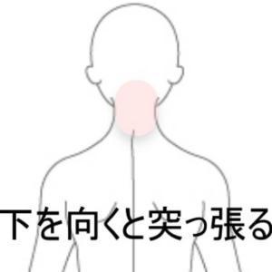 寝違え 室蘭登別すのさき鍼灸整骨院症例報告