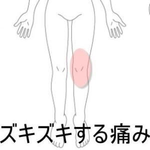 膝立ちすると痛くなる膝関節 室蘭登別すのさき鍼灸整骨院 症例報告