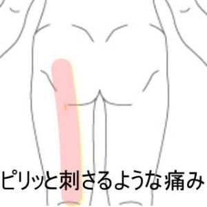 座骨神経に沿った痛み 室蘭登別すのさき鍼灸整骨院 症例報告