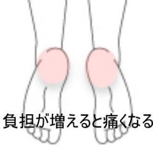 踵の痛み 室蘭登別すのさき鍼灸整骨院 症例報告