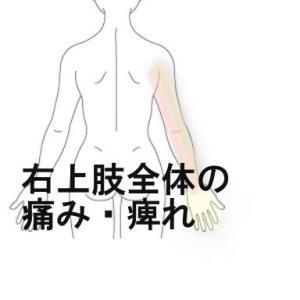 上肢全体の痛みと痺れ 室蘭登別すのさき鍼灸整骨院 症例報告