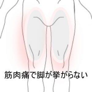 下肢筋肉痛 登別室蘭登別すのさき鍼灸整骨院 症例報告