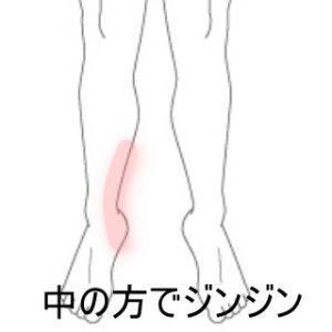 三角骨障害 登別室蘭登別すのさき鍼灸整骨院 症例報告