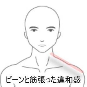 寝違え 室蘭登別すのさき鍼灸整骨院 症例報告