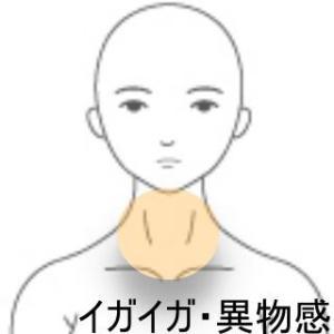 喉の違和感 室蘭登別すのさき鍼灸整骨院 症例報告