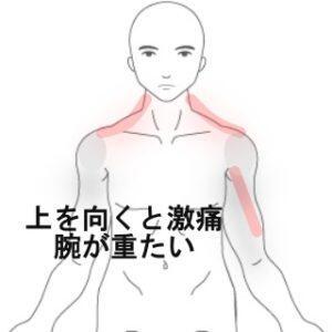腕の痛み 不眠 室蘭登別すのさき鍼灸整骨院 症例報告