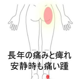 長年の股関節のトラブル・併発した踵の痛み 室蘭登別すのさき鍼灸整骨院 症例報告