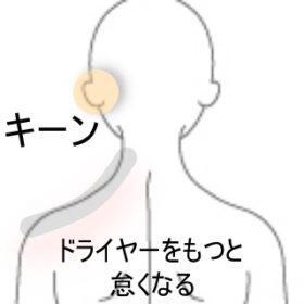 耳鳴り 室蘭登別すのさき鍼灸整骨院 症例報告