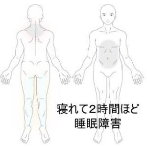 睡眠障害 寝付けず覚醒状態が続く 室蘭登別すのさき鍼灸整骨院 症例報告