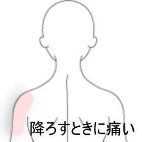 ランドセルを降ろした時に感じた肩の痛み 室蘭登別すのさき鍼灸整骨院 症例報告