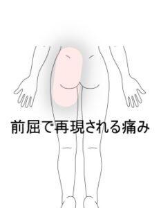 介護負担が増すことで発した腰痛 室蘭登別すのさき鍼灸整骨院 症例報告