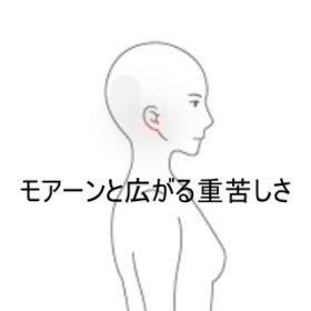 後頭部痛 室蘭登別すのさき鍼灸整骨院 症例報告