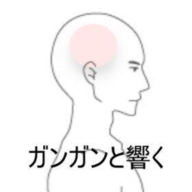 側頭部コメカミ付近の頭痛 室蘭登別すのさき鍼灸整骨院 症例報告