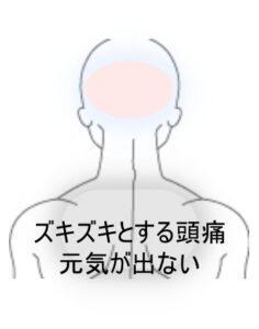 後頭部からコメカミにかけての頭痛 室蘭登別すのさき鍼灸整骨院 症例報告