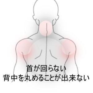背中と首の痛み 室蘭登別すのさき鍼灸整骨院 症例報告