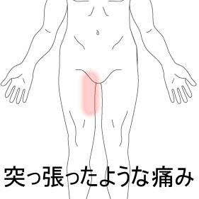 軽い肉離れ 室蘭登別すのさき鍼灸整骨院 症例報告