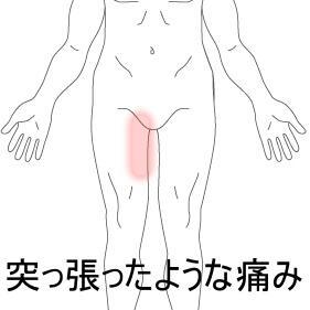 開脚動作で痛めた脚 室蘭登別すのさき鍼灸整骨院 症例報告