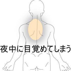 就寝中に起こる背部痛 室蘭登別すのさき鍼灸整骨院 症例報告