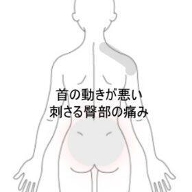 頸部・臀部痛 室蘭登別すのさき鍼灸整骨院 症例報告