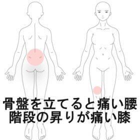 骨盤を立てると痛い腰 室蘭登別すのさき鍼灸整骨院 症例報告