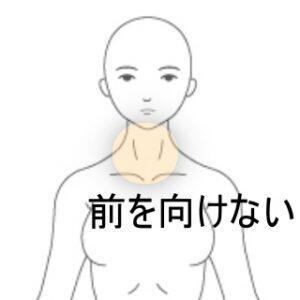 前を向けない 室蘭登別すのさき鍼灸整骨院 症例報告