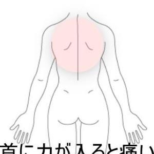 背部の痛み 室蘭登別すのさき鍼灸整骨院 症例報告