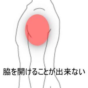 打撲した肩 室蘭登別すのさき鍼灸整骨院 症例報告