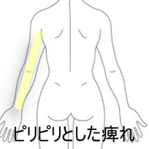 腕全体の痺れ 登別室蘭すのさき鍼灸整骨院 症例報告