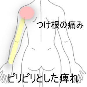 腕の痺れ 室蘭登別すのさき鍼灸整骨院 症例報告