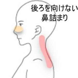 頸痛と鼻詰まり 室蘭登別すのさき鍼灸整骨院 症例報告
