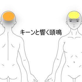 頭鳴 室蘭登別すのさき鍼灸整骨院 症例報告