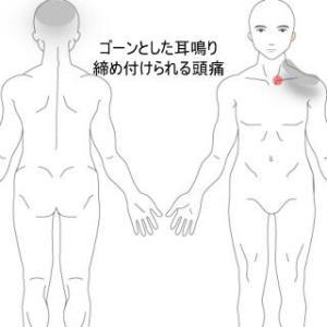 胸鎖関節炎からの頭痛・耳鳴り 室蘭登別すのさき鍼灸整骨院 症例報告