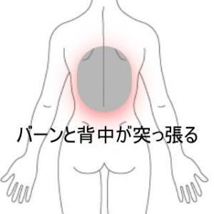 背中の痛みで前を見ることが出来ない 室蘭登別すのさき鍼灸整骨院 症例報告