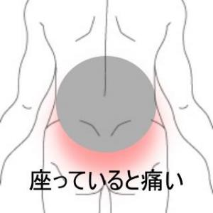 持病が悪化したデスクワーク腰痛 室蘭登別すのさき鍼灸整骨院 症例報告