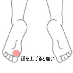 足裏の痛み 室蘭登別すのさき鍼灸整骨院 症例報告