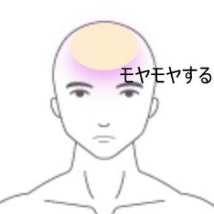額にあるモヤモヤ感・頭痛 室蘭登別すのさき鍼灸整骨院 症例報告