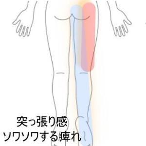 疲れたときに感じる脚の痺れ 室蘭登別すのさき鍼灸整骨院 症例報告