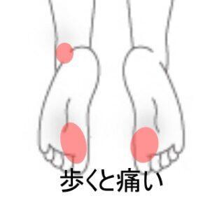 足裏母指球部の痛み 室蘭登別すのさき鍼灸整骨院 症例報告