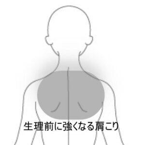 生理時に起きやすい肩こり背部痛 室蘭登別すのさき鍼灸整骨院 症例報告