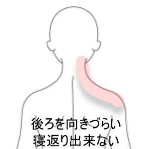 首痛 室蘭登別すのさき鍼灸整骨院 症例報告