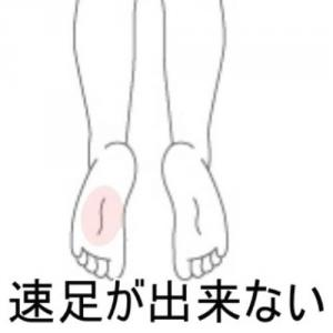 足関節捻挫後遺症 室蘭登別すのさき鍼灸整骨院症例報告