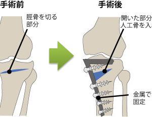 変形性膝関節症の手術で脳梗塞の合併症が起き半身麻痺と胃婁になるケースに思う
