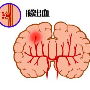脳出血や脳梗塞の後遺症の改善と予防は血液性状と血流の良し悪し次第で決まる